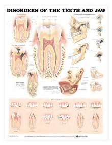 disorders of human teeth picture 1