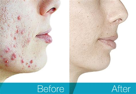 acne mark removal picture 10