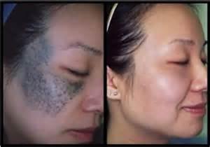 skin bleaching creams picture 10