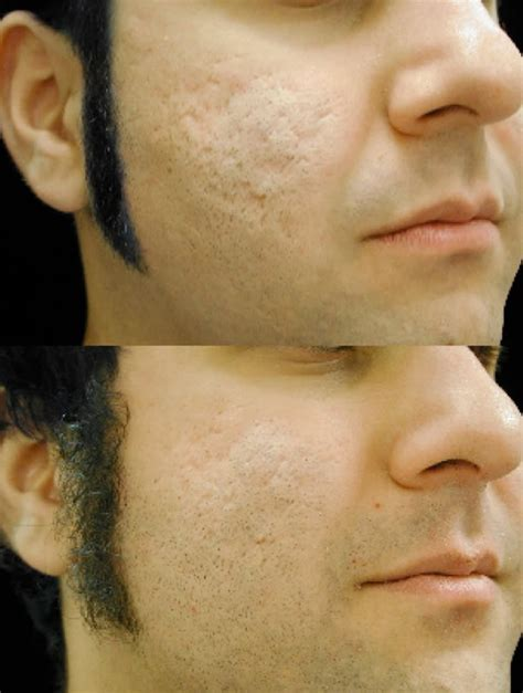 acne scars pock marks picture 1