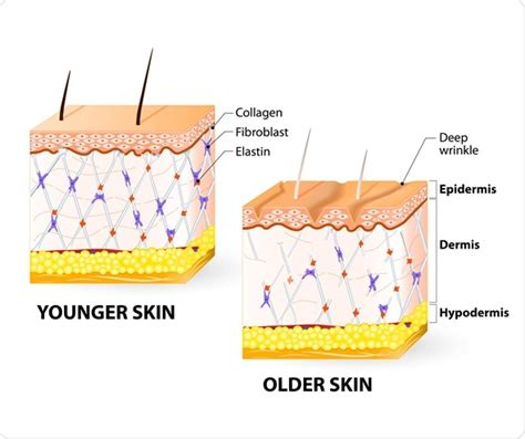 dermal layer of the skin picture 2