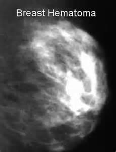 procedure for treatment of seroma in breast augmentation picture 10