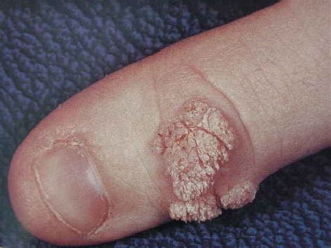 cure for genal warts picture 11