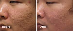 acne mark removal picture 15