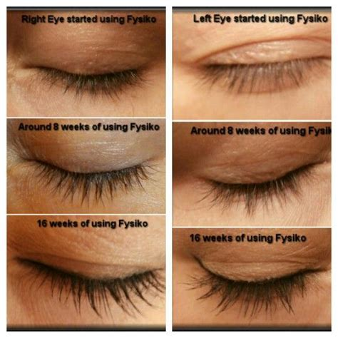 fysiko eyelash growth serum side effects picture 1