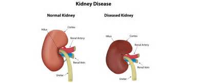 bladder pressure with renal disease picture 5
