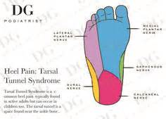 vitamins for tarsal tunnel syndrome picture 10