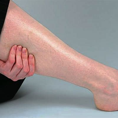 causes for muscle cramps in hands picture 15