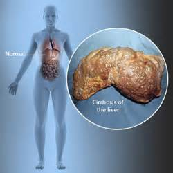 signs liver problems human picture 18