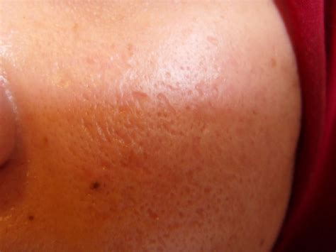 skin problems picture 5
