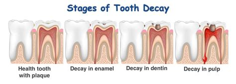 babt teeth picture 3