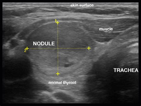 weed to treat thyroid nodules picture 9