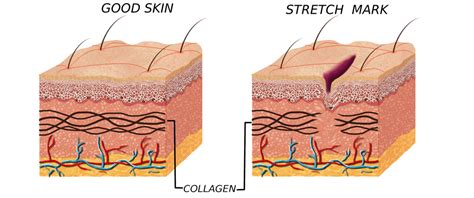 how to get rid of stretch marks on picture 2