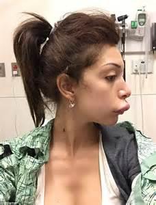 Lip implant picture 3