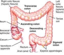 redundant colon picture 3