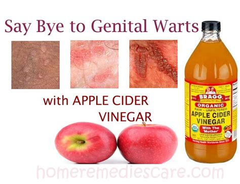 home remedies for genital warts picture 10