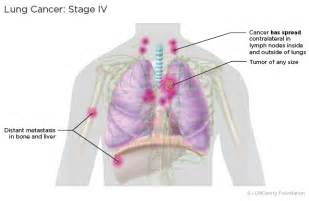 stage 4 metastatic liver cancer picture 19