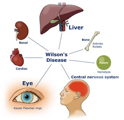 wilsons thyroid treatments picture 1