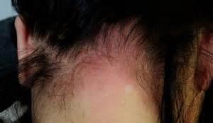 allergic reaction symptoms hair dye picture 15