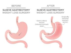 gastrointestinal surgery for weight loss picture 6