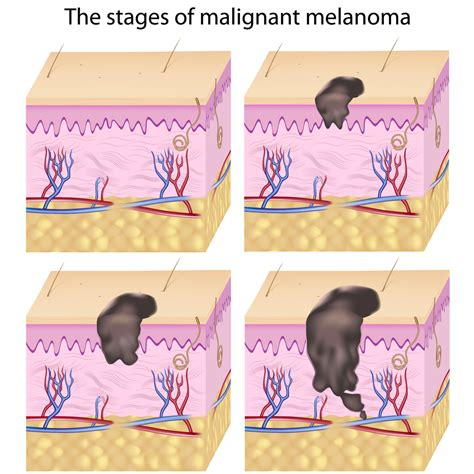 dermatologist skin tumors picture 17