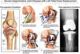 degenerative joint disease of the left shoulder picture 9