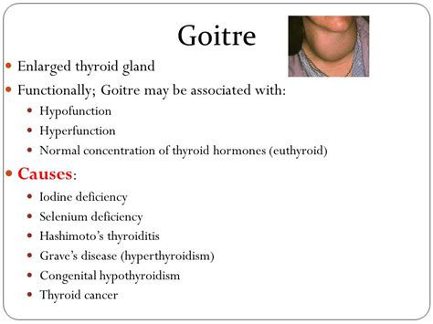 causes for enlarged thyroid picture 5