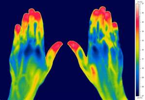 thermal picture 1