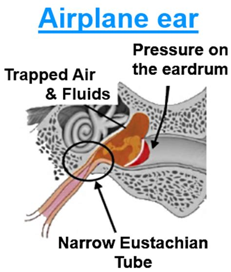 pressure in my ear when i sleep picture 1