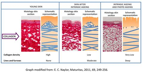 the effects of ageing on collagen and flexibility picture 5