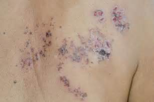 herpes outbreak with antidepressants picture 9