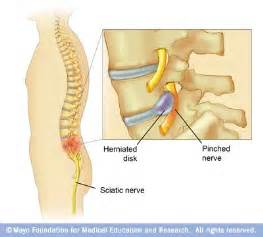 picture of homepatheic nerve pills picture 5