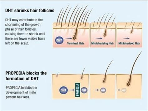does testosterone stop hair growth picture 3
