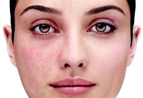 top 5 rosacea treatments picture 6