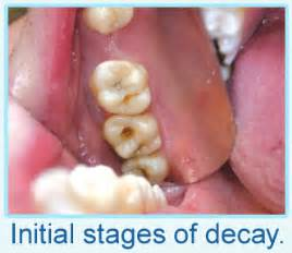 decay and h and symptoms picture 14