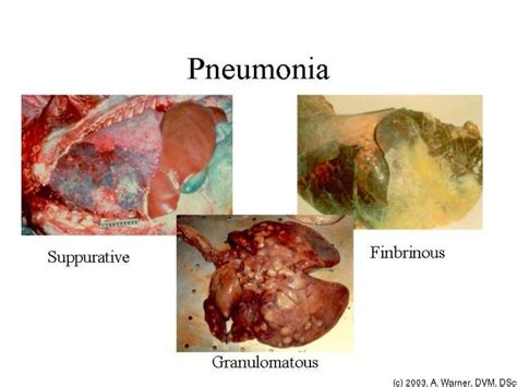bacterial pneumonia contagious picture 1