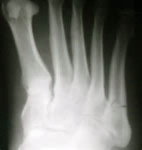 injury to mtp joint of fifth metatarsal picture 2