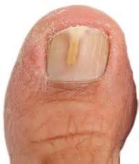 stages of nail fungus picture 1