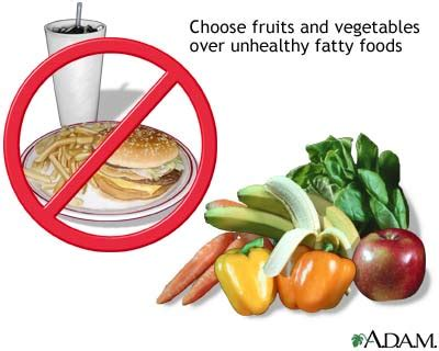 why are diuretics an unhealthy way to lose weight? picture 4