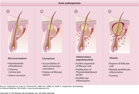 pathophysiology acne picture 1