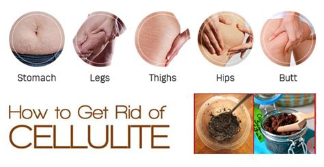 how to get rid of cellulite on thighs picture 5