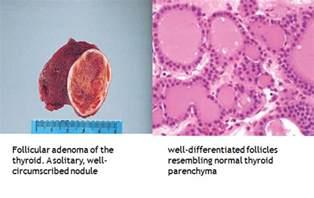 follicular cells in thyroid nodule picture 13