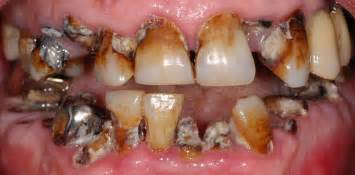 decaying teeth pictures picture 11