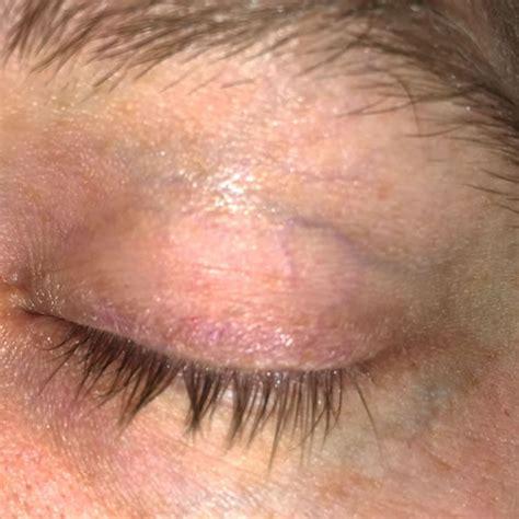 dry skin blepharitis picture 1