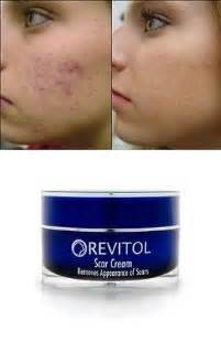 revitol on picture 7