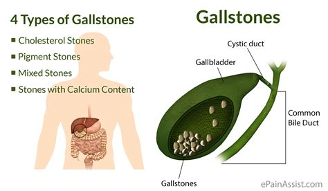 causes of gall bladder problems picture 1