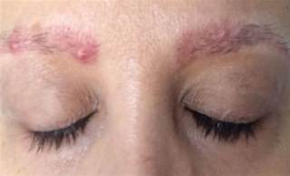 waxing acne picture 17