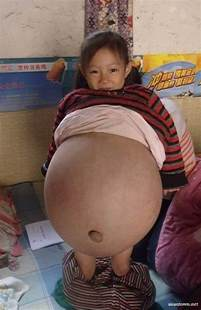 huge pregnant stomach with dectuplets picture 14