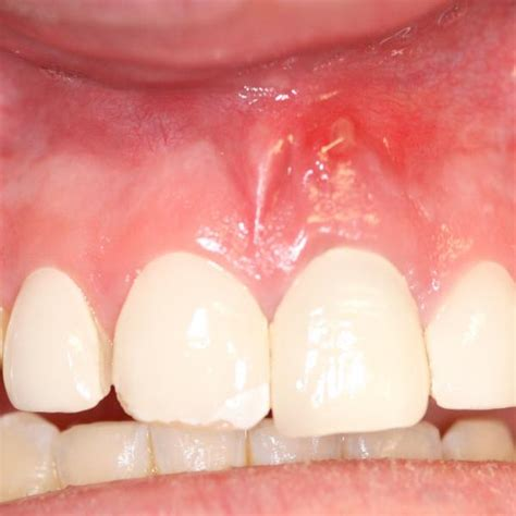 infection in teeth picture 2