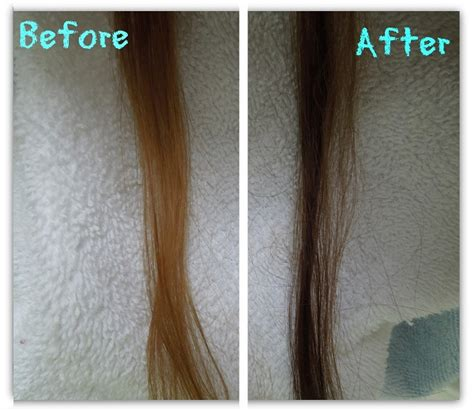 diseases that would cause hair to darken picture 1